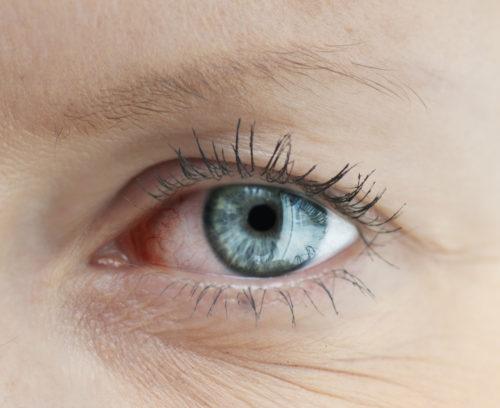 How to Avoid Chronic Dry Eye this Autumn Winter