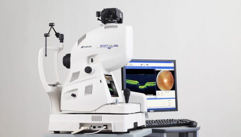 3d oct scan the optical studio
